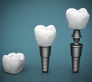 3 part implant
