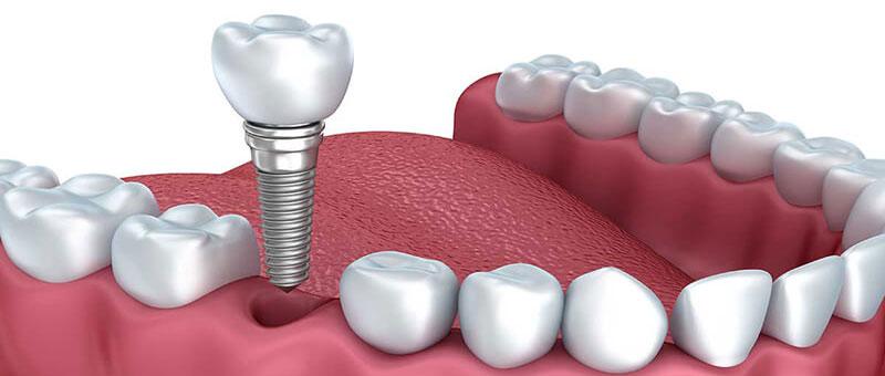 Dental Implant Single