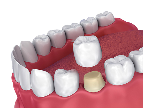 dental crown and bridges