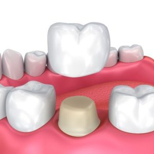 dental crowns elegant dental care