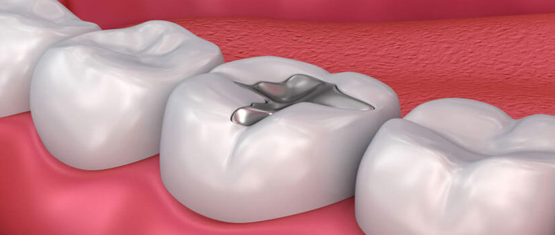dental-fillings-and-root-canal