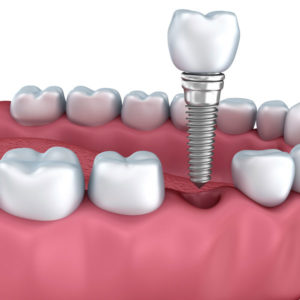 dental implants in elegant dental care