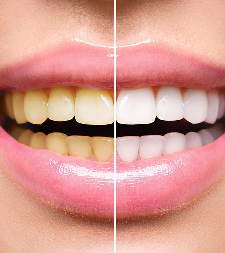teeth stain removal dentistry in Maryland Columbia