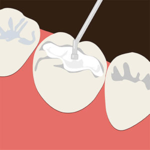 dental filling graphic