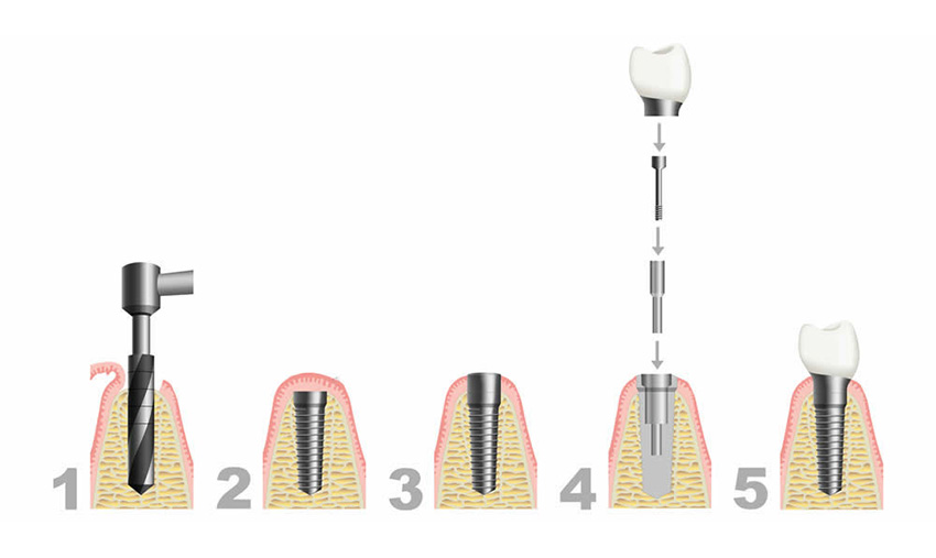 Dental implant steps