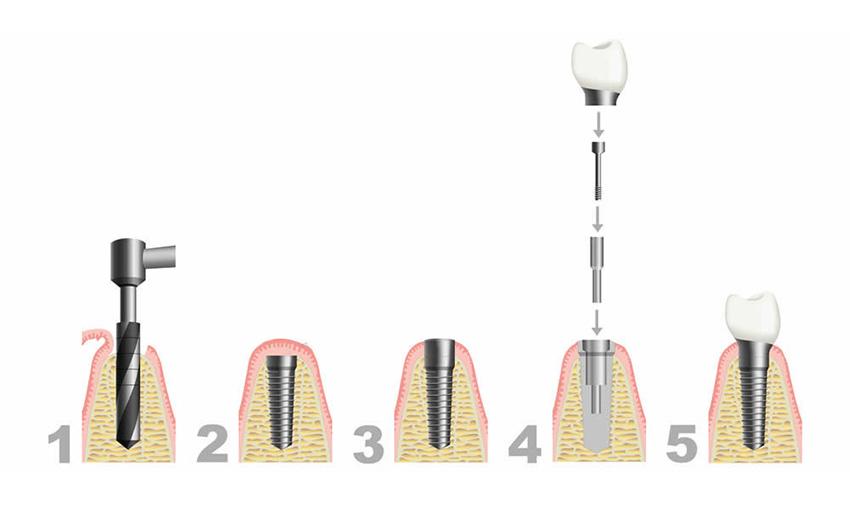 Dental implant steps