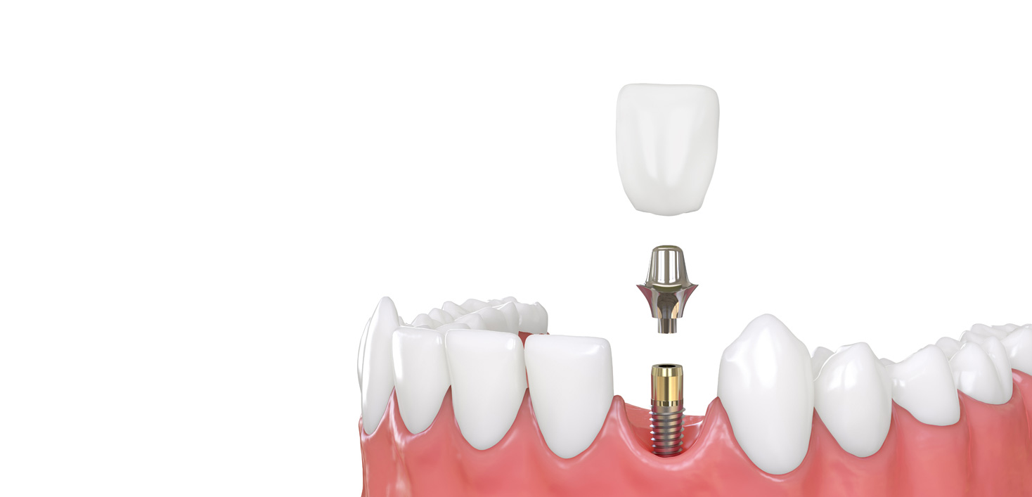 Implants per tooth