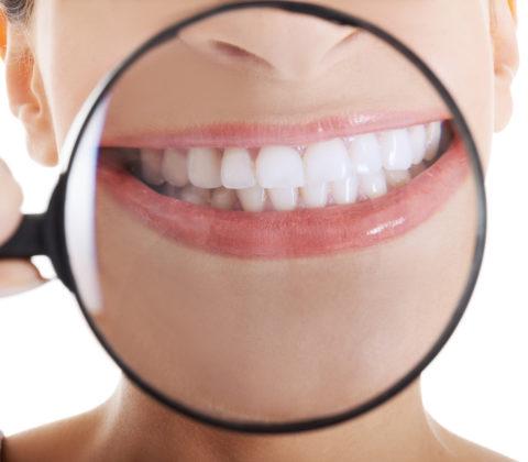 best teeth whitening procedure