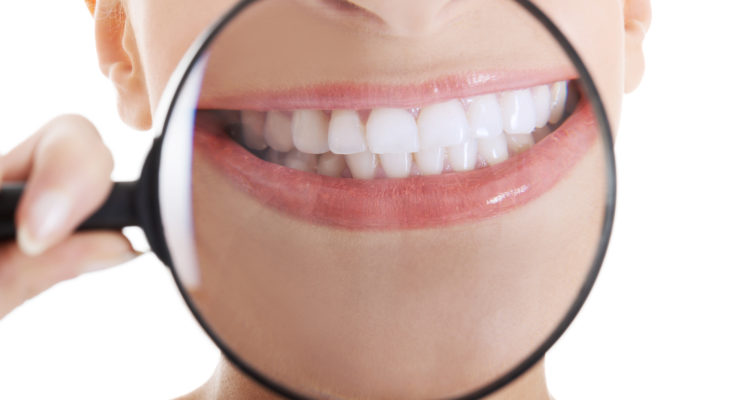 best teeth whitening procedure