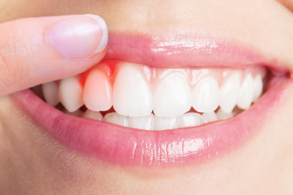 gum disease symptoms