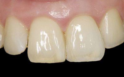 Craze lines on teeth