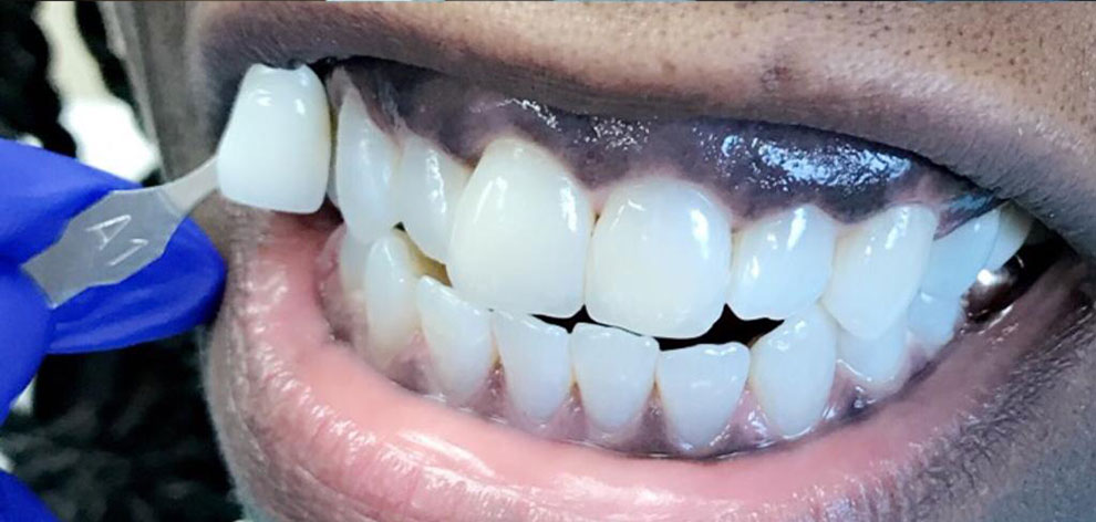 Dental Crowns (After)