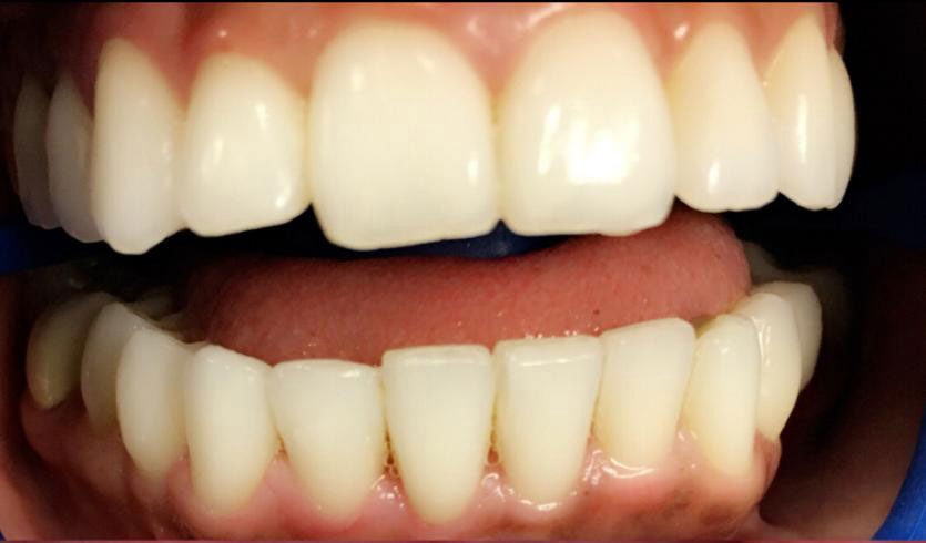 Tooth-Whitening-Before