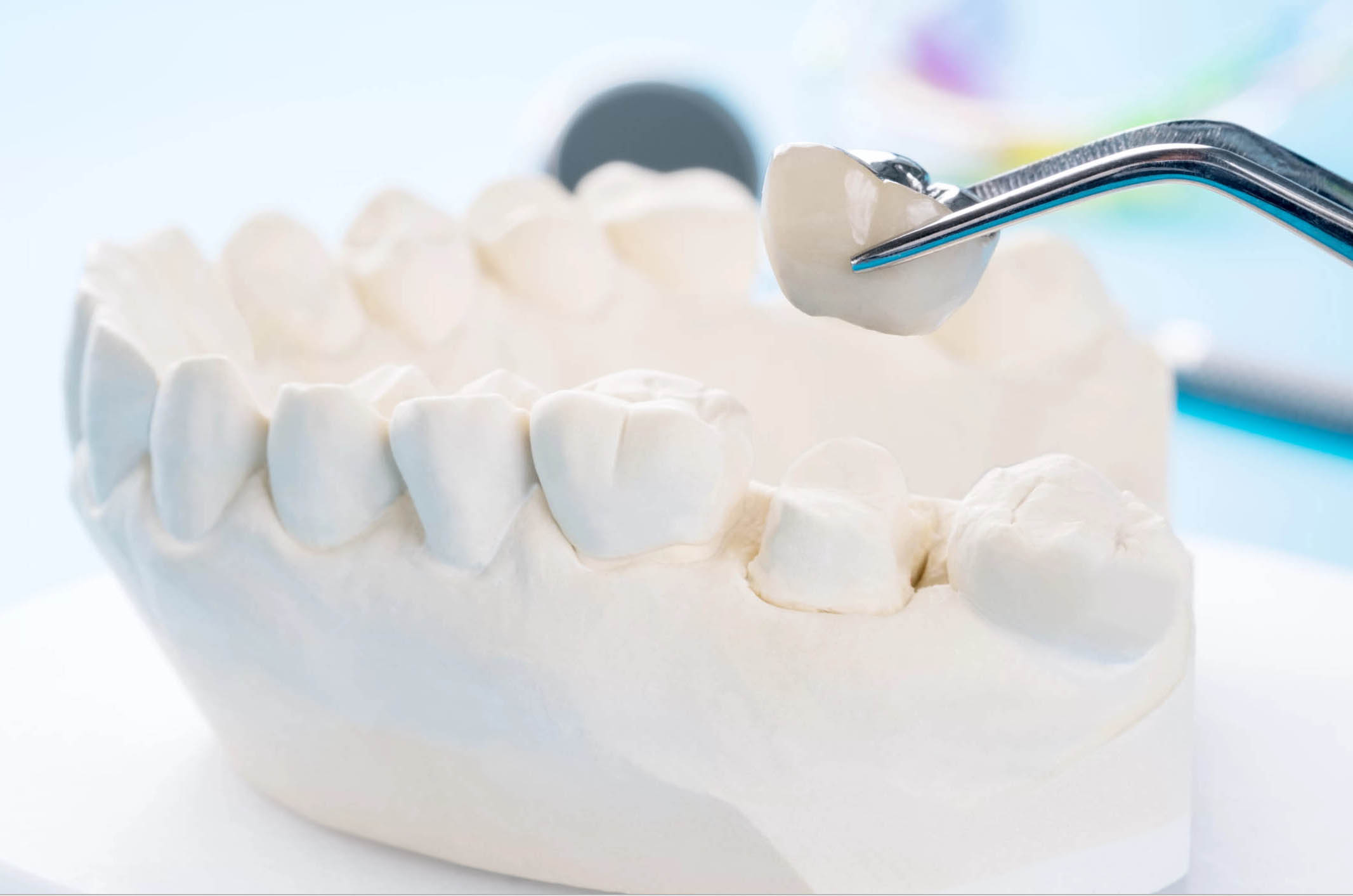 Dental crown for tooth decay
