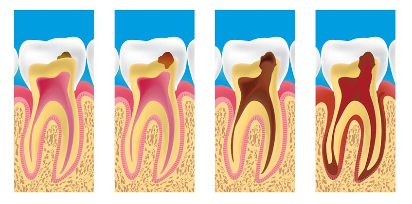 Dental decay spread signs