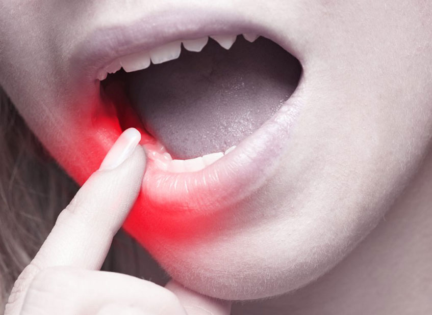 Sensitive teeth pain