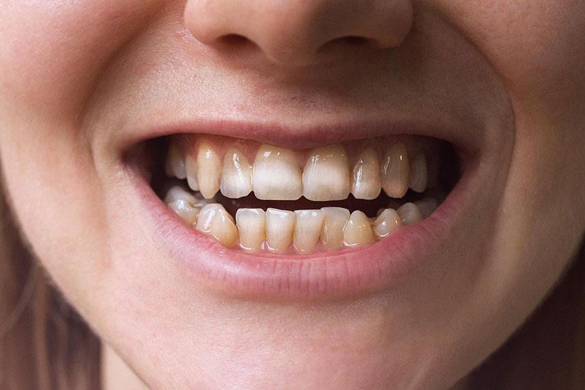 Tooth enamel diseases