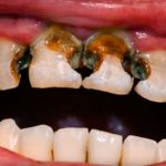 Tooth decay spread signs