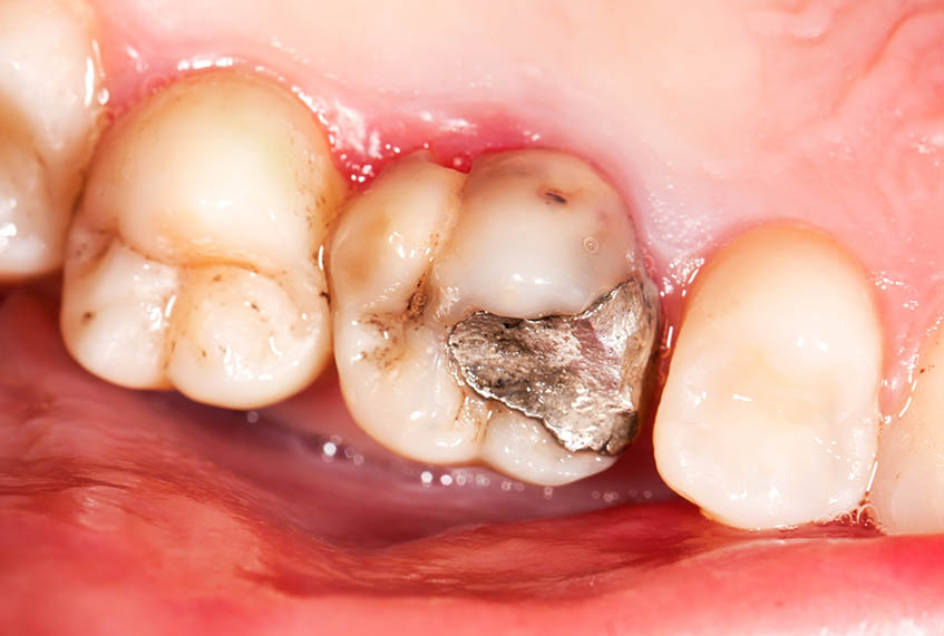 Tooth decay from teeth to teeth