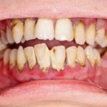 Tooth diseases types