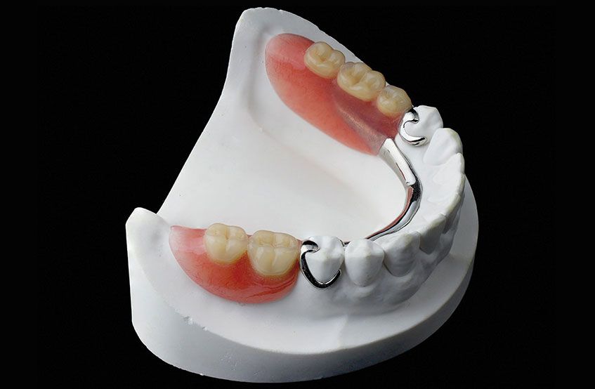 Cobalt Dentures
