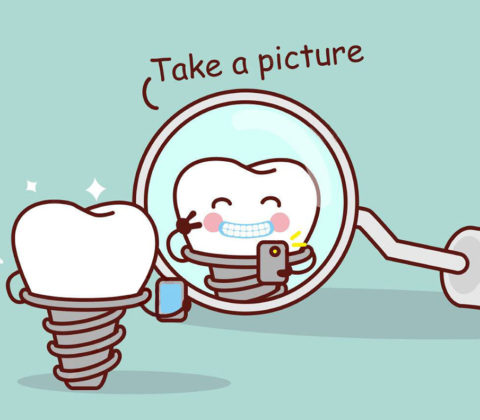 dental implant fun image