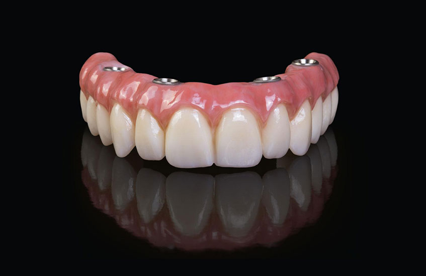 Fixed and permanent denture