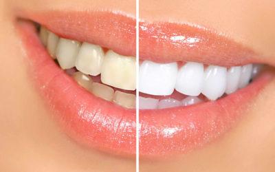 teethwhiteningcost