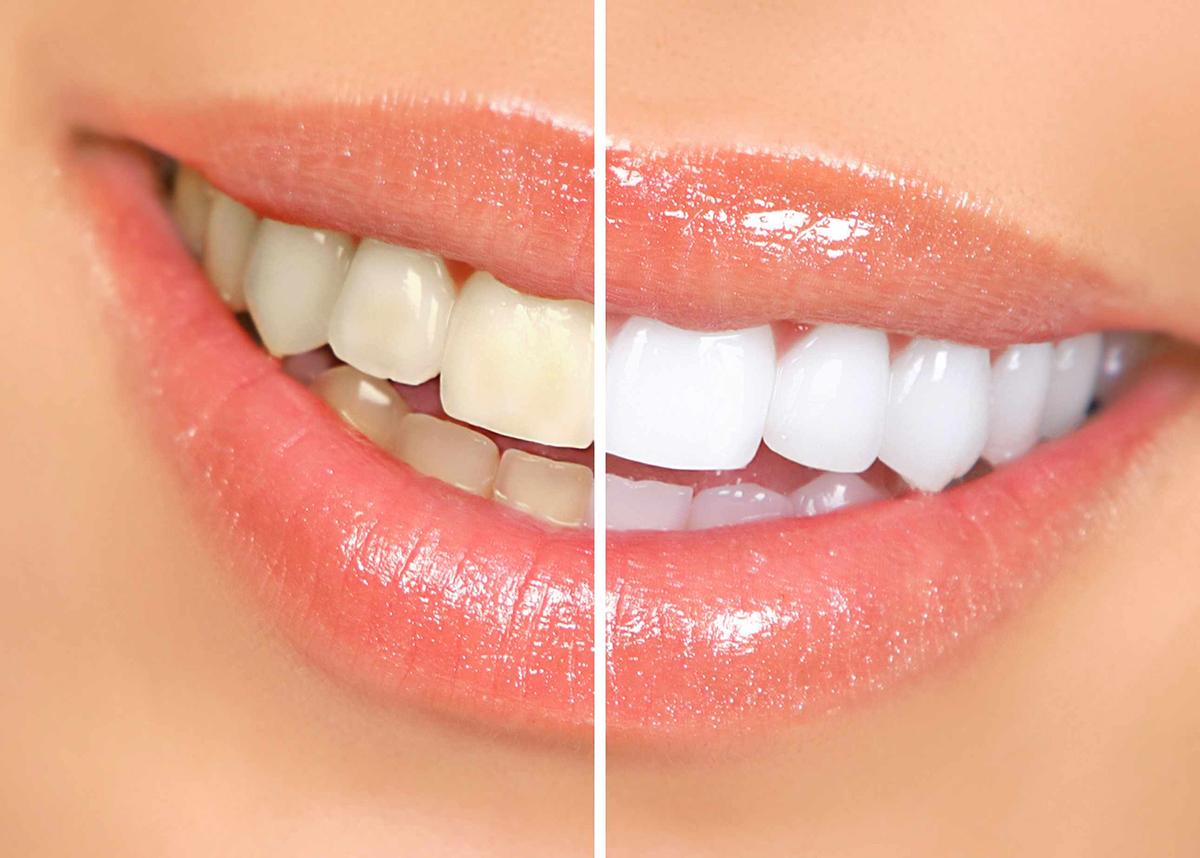 Different Teeth Whitening Costs 2020 Update Elegantdentcare Blog