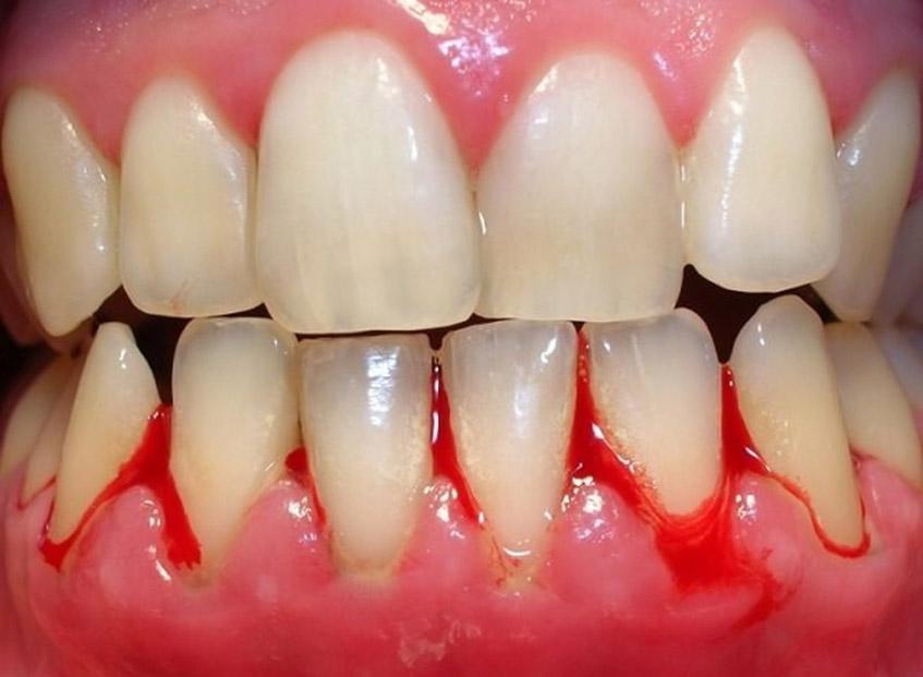 Gum Pain Or Bleeding